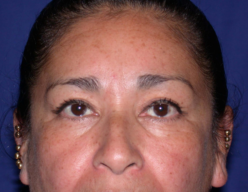 blepharoplasty after