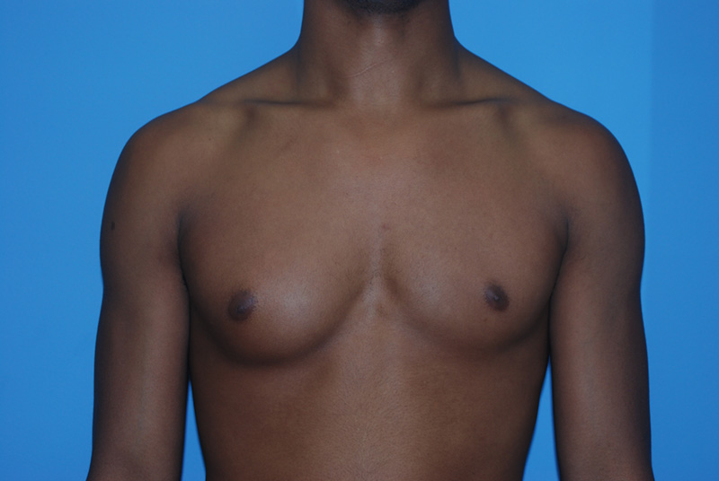 Male Breast Reduction - Before