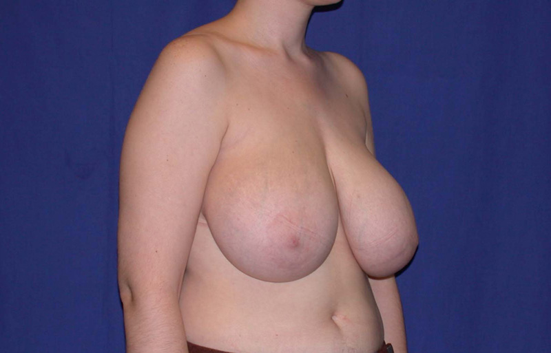 Breast Reduction - Before