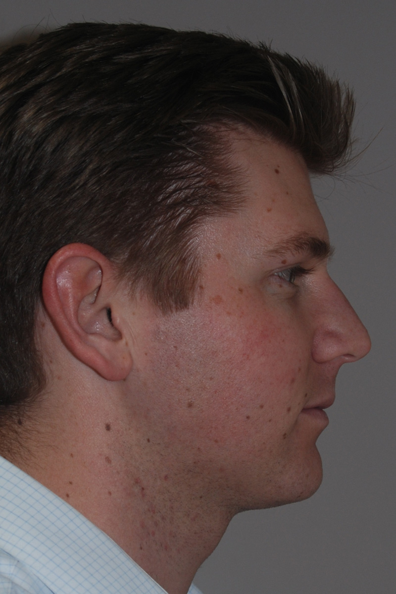 after submental liposuction