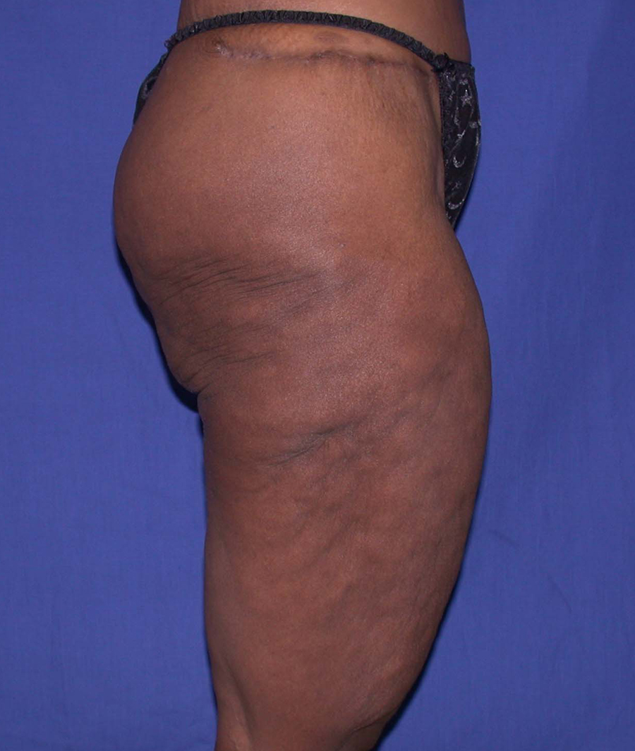 Before Thighplasty