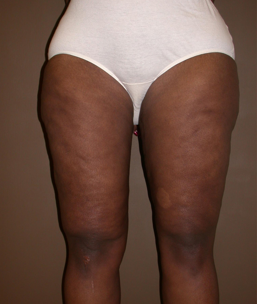 After Thighplasty