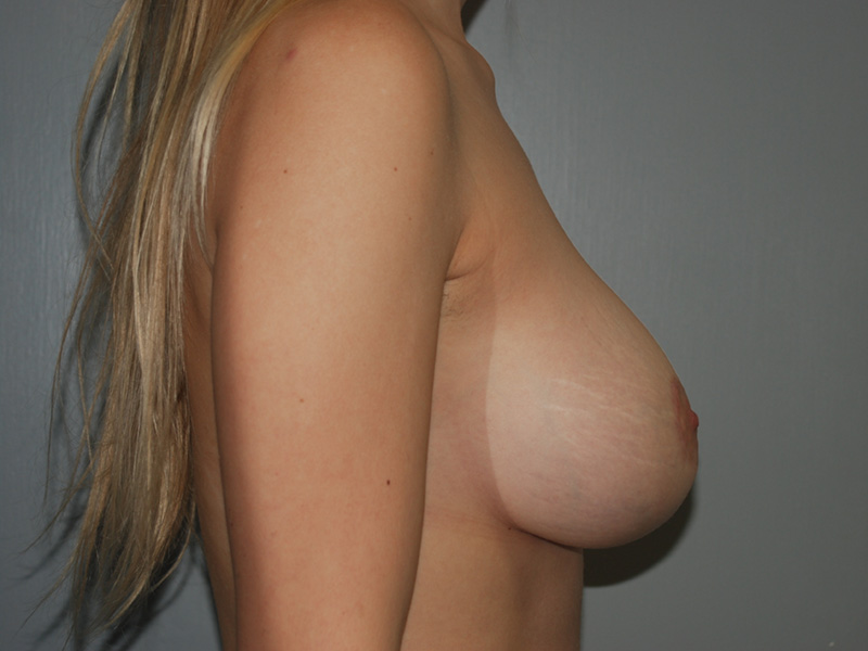 After Breast Lift with Implants by Dr. Bermudez in San Francisco