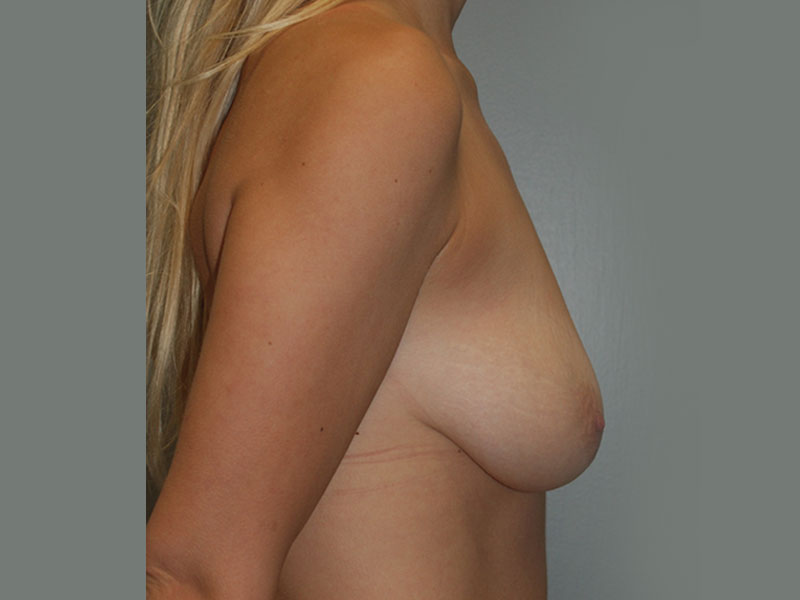 Before Breast Lift with Implants by Dr. Bermudez in San Francisco