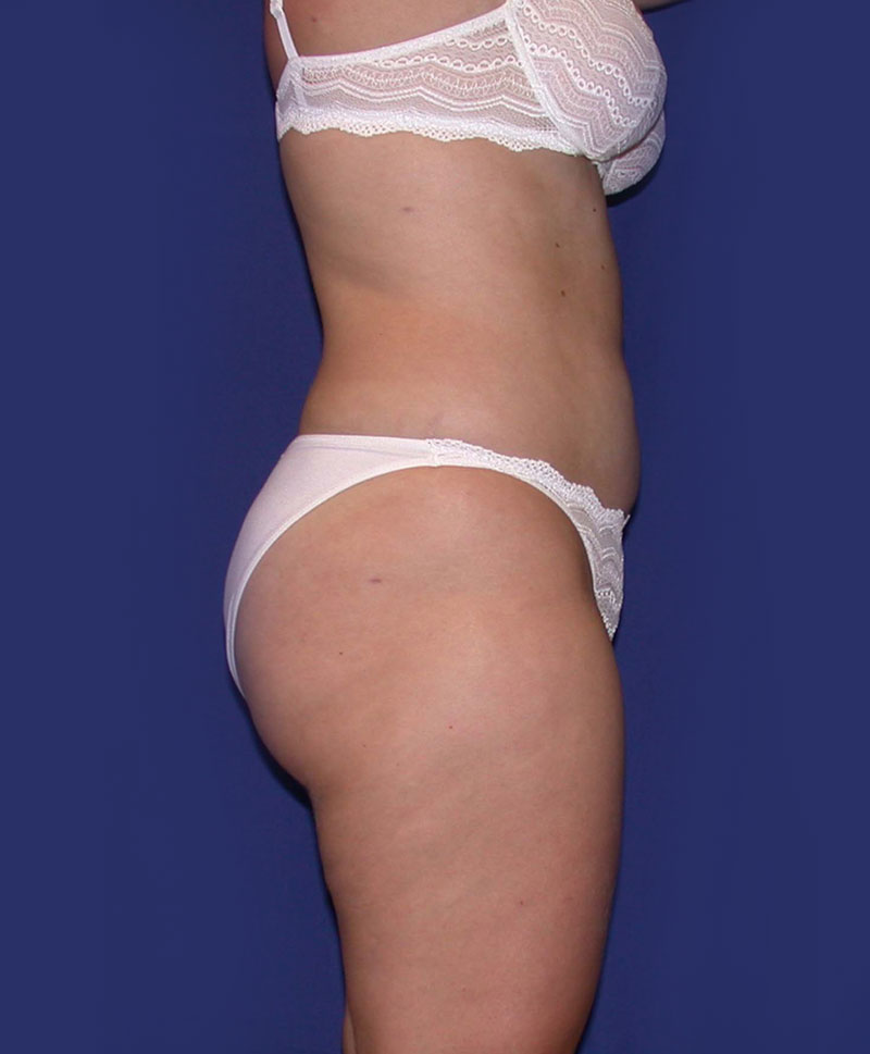 After Tummy Tuck Surgery by Dr. Bermudez in San Francisco