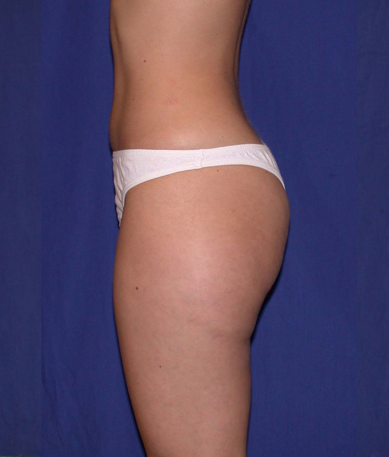 Before Liposuction by Dr. Bermudez in San Francisco