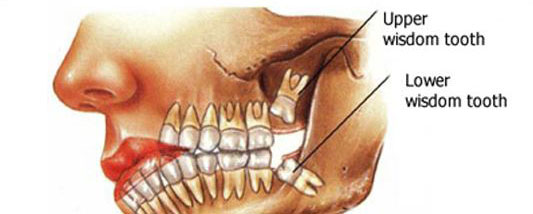 Location of the wisdom teeth​​​​​​​