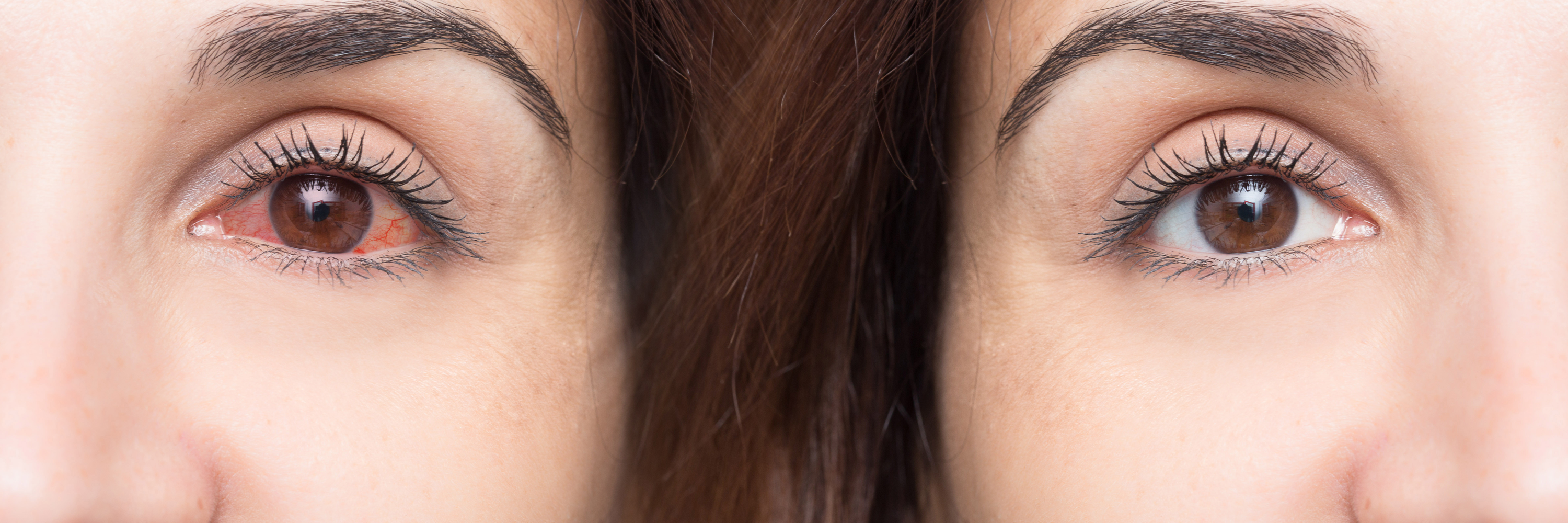 What Are the Benefits of Treating Dry Eye With LipiFlow?