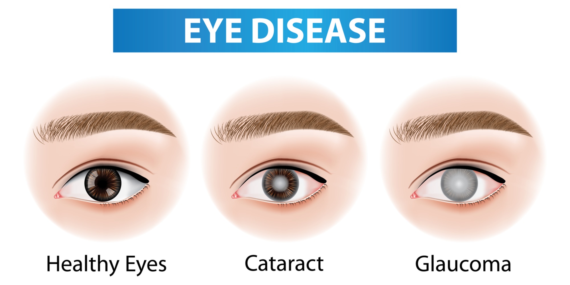 What Are the Most Common Eye Diseases?