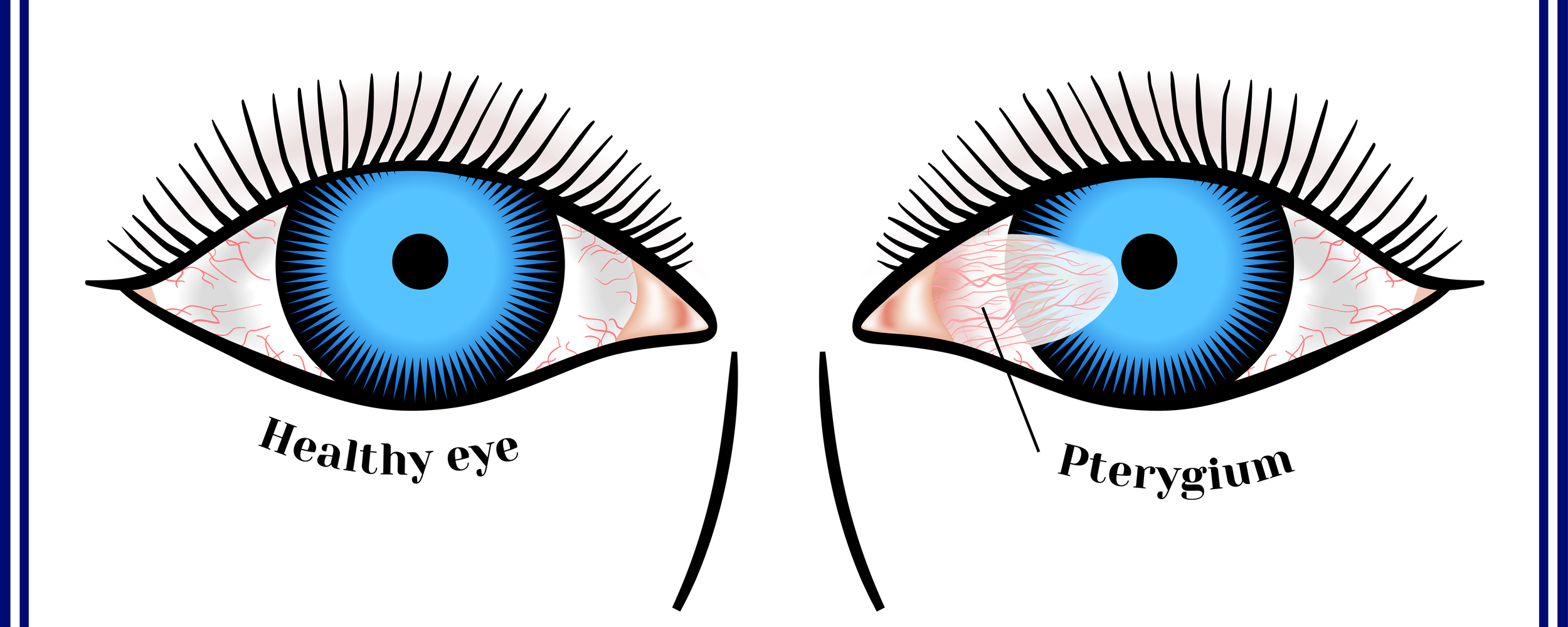 Signs and Treating Pterygium