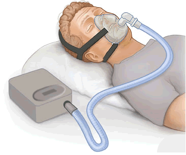 Resting man with CPAP Machine