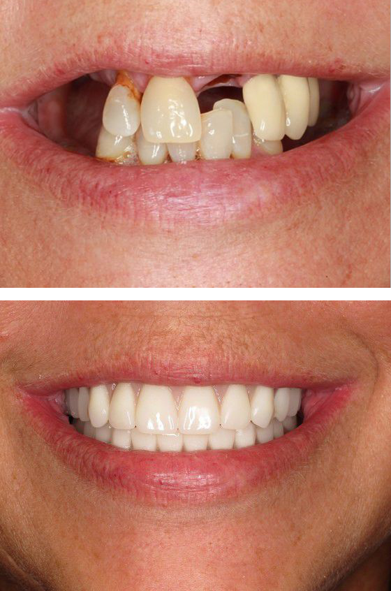 before and after full-mouth reconstruction
