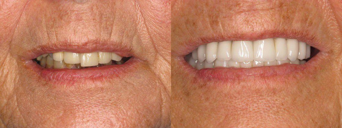 Full Mouth Restoration Dental Implants Treating Extensive