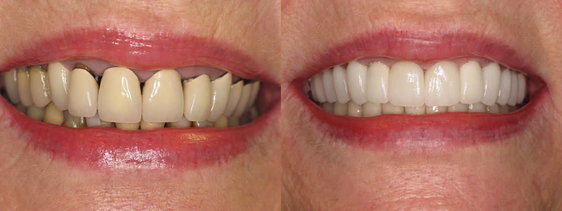 Full Mouth Restoration Replace Failing Porcelain To Metal