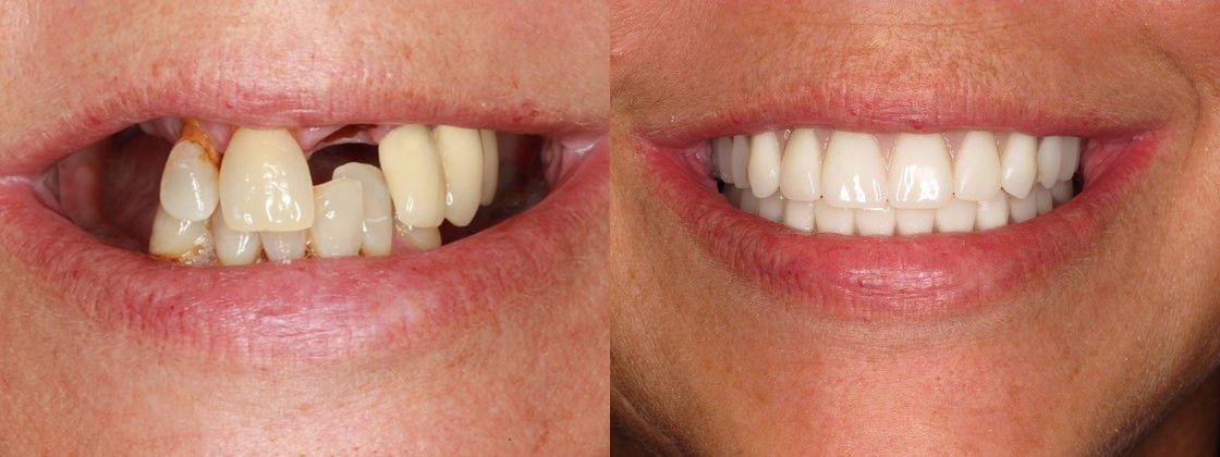 Dental Implant Dental Implants Replacing Loose Dentures