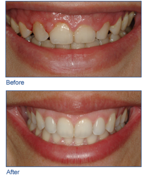 Schedule Dental Consult