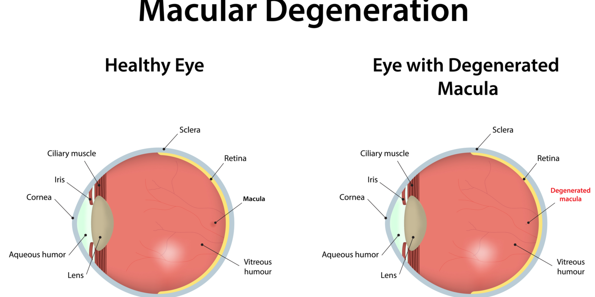 How Can Your Eye Doctor Help Treat Macular Degeneration or AMD?