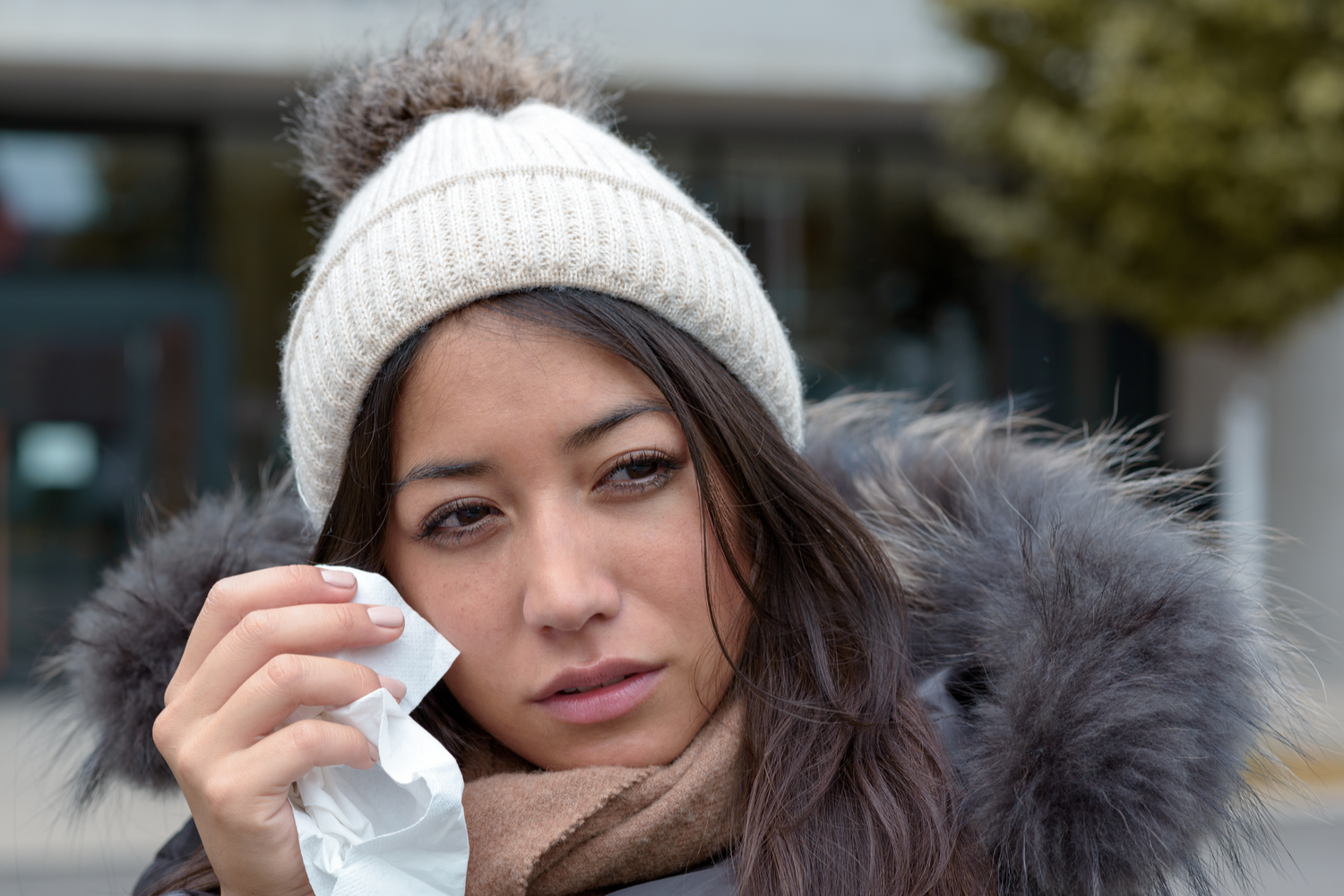 Why Are Dry Eyes Worse in the Winter?
