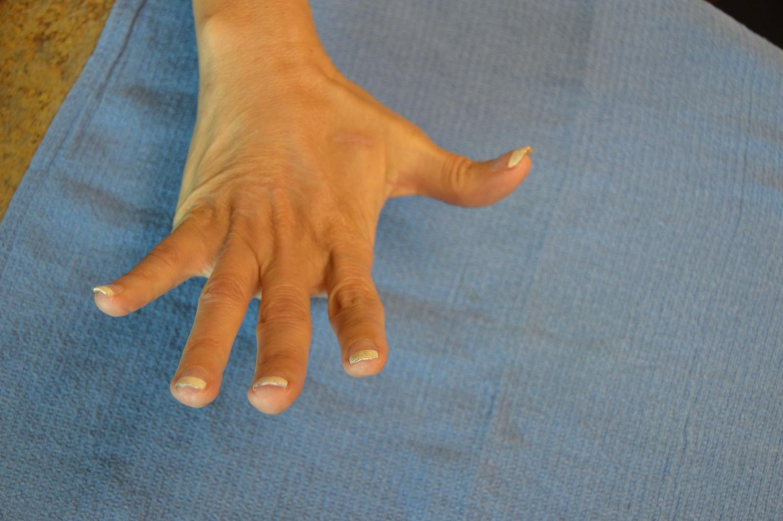 After Hand Rejuvenation