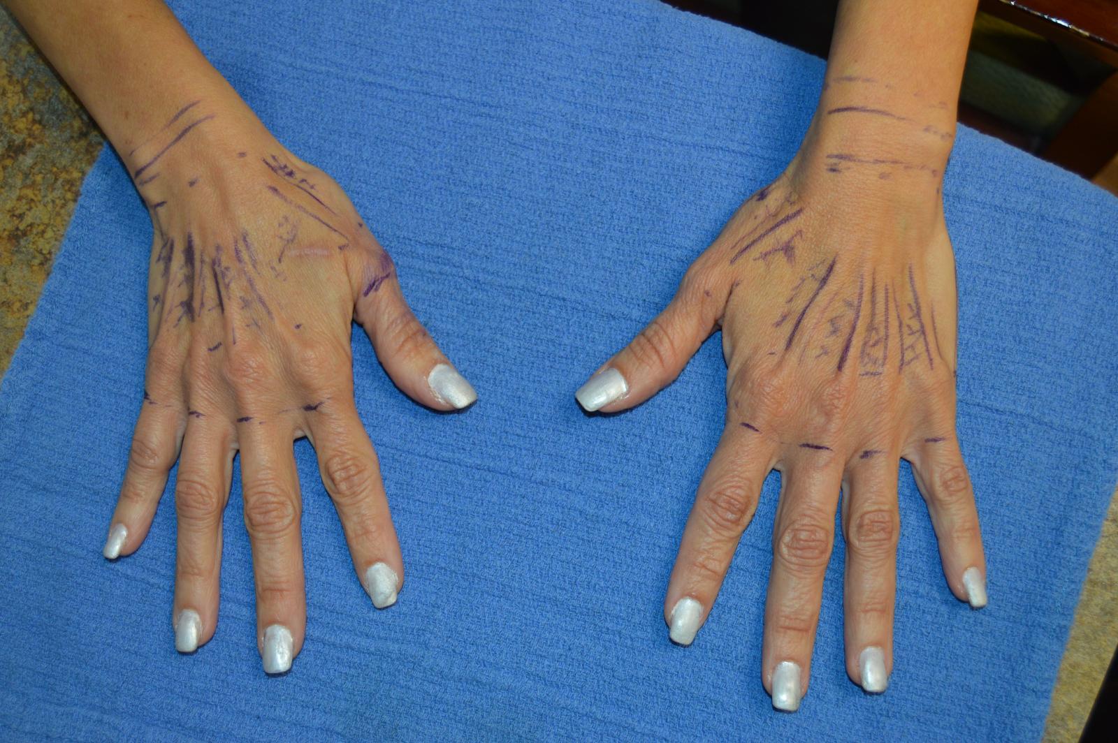 Before Hand Rejuvenation
