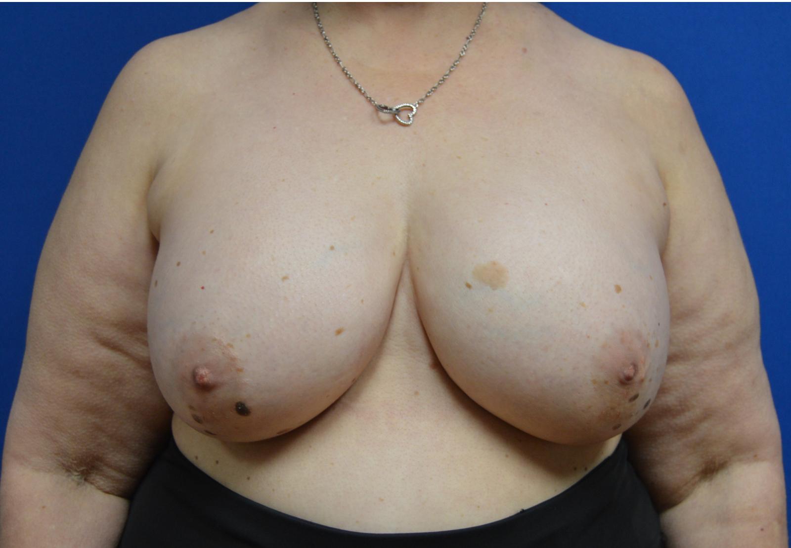 After Saline Implant