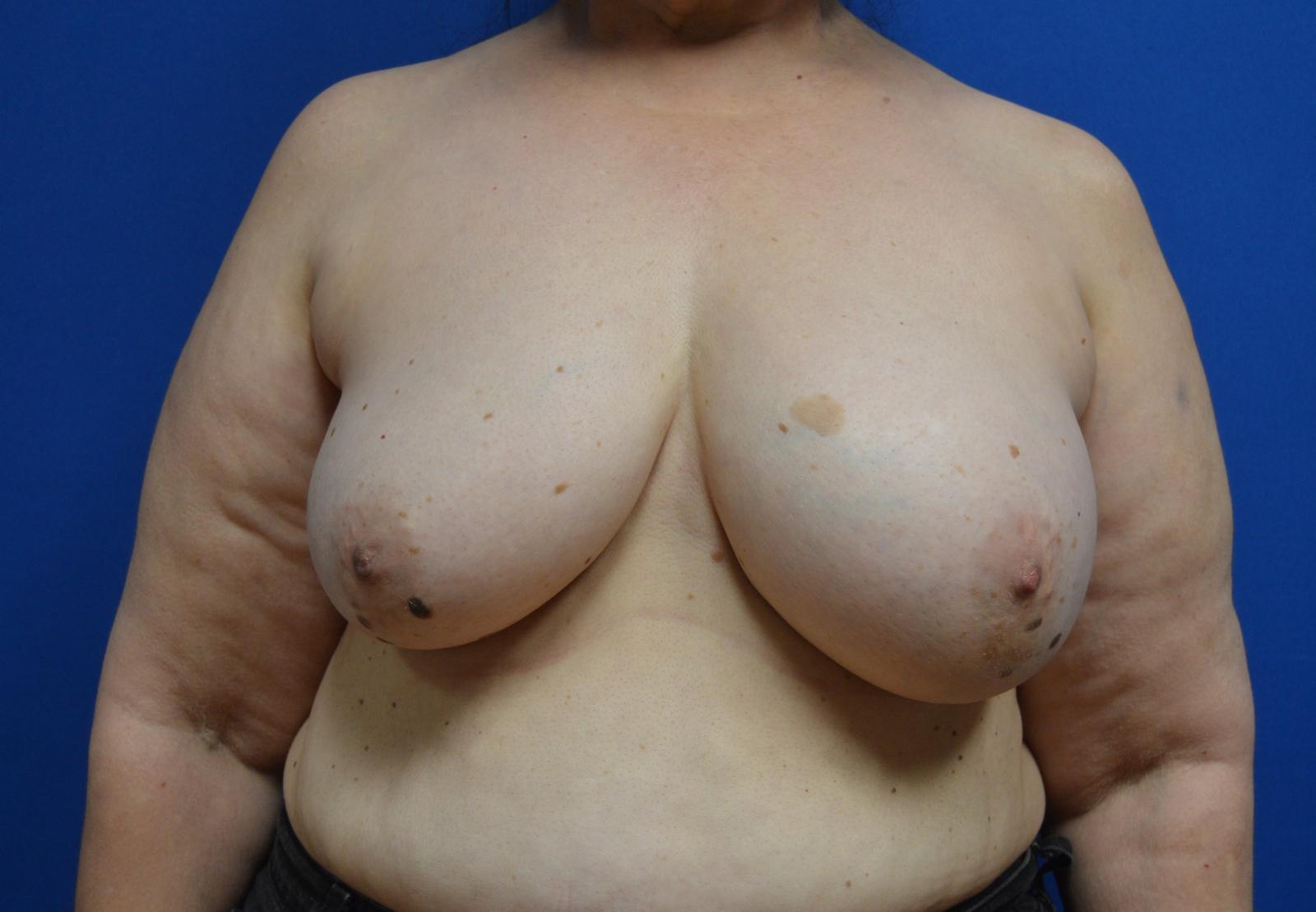 Before Saline Implant