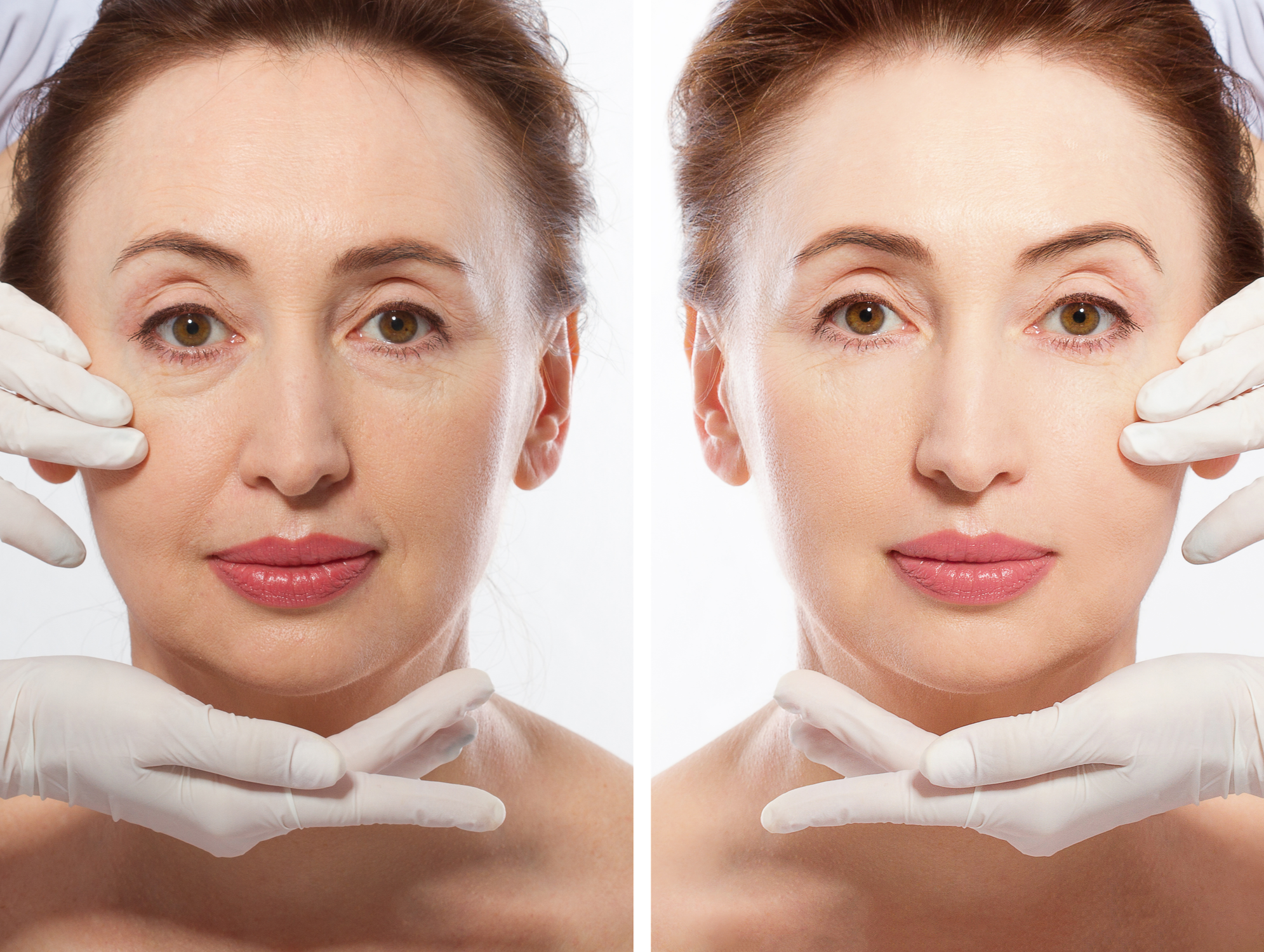 Getting a Youthful Facial Appearance With a Facelift