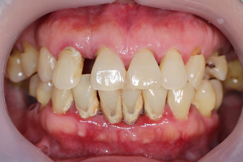 Gum disease mouth