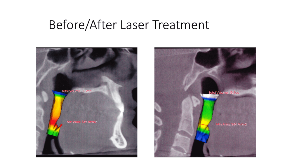 Before / After Laser Treatment