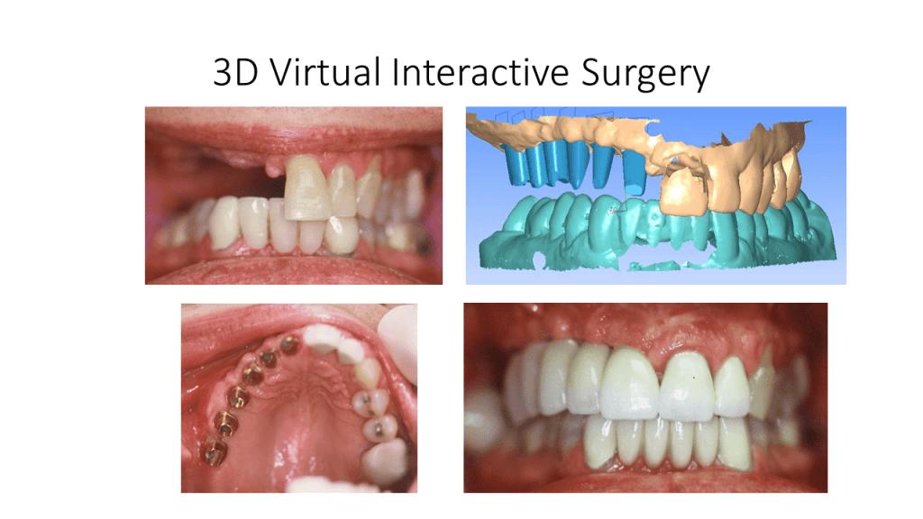 3D Virtual Interactive Surgery