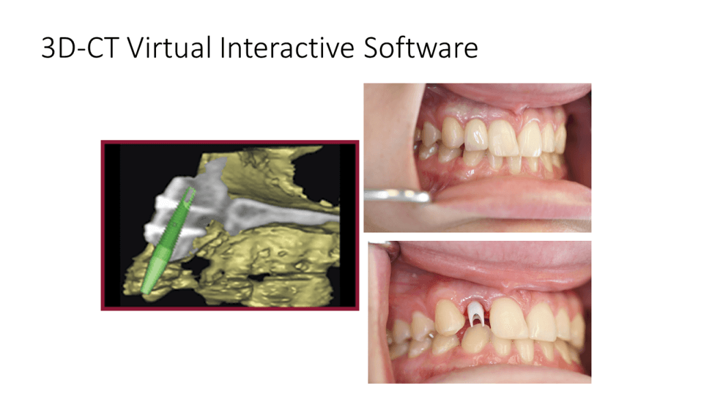 3D-CT Virtual Interactive Software