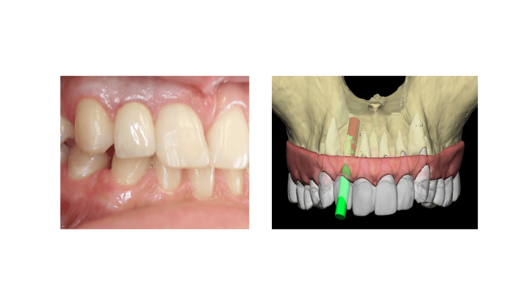 Virtual Dental Implant Surgery