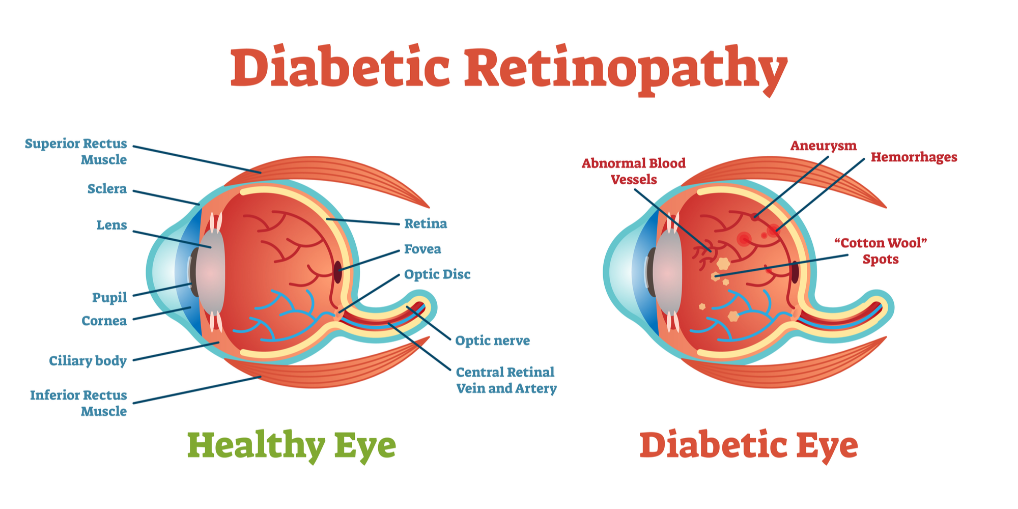 How to Prevent Vision Loss Related to Diabetic Retinopathy
