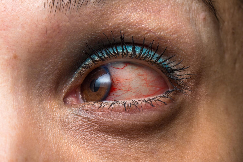 Halloween Eye Safety Tips