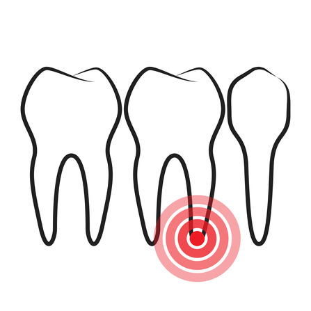How does a root canal become infected?