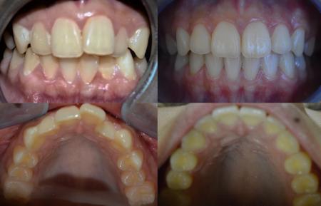 Invisalign and orthodontics