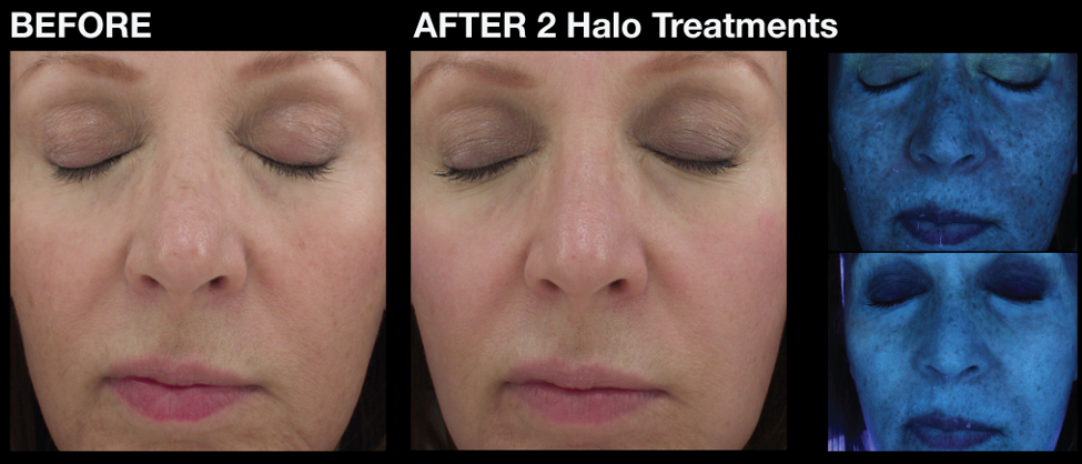 before and after halo