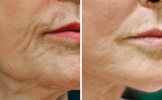 face wrinkles