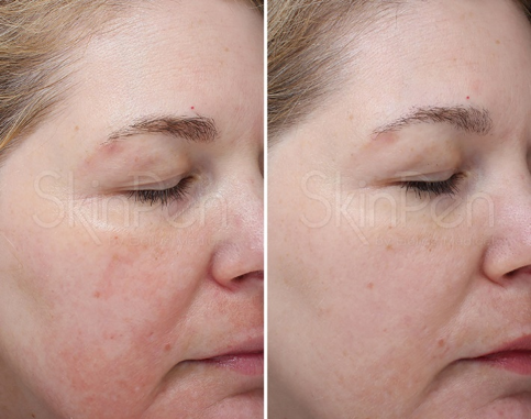 real results from microneedling