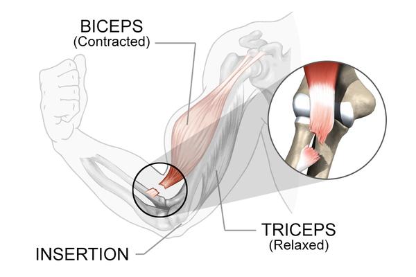 bicep repair