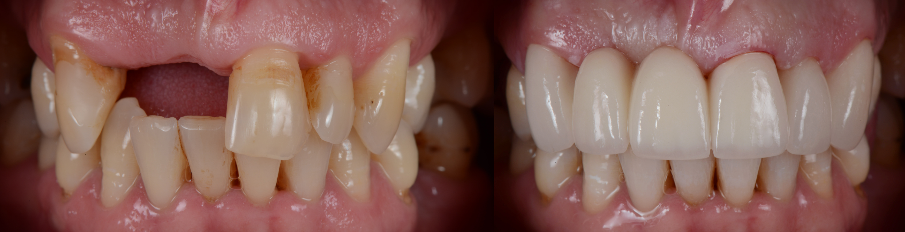 What Is the Process of Getting Dental Bridges?