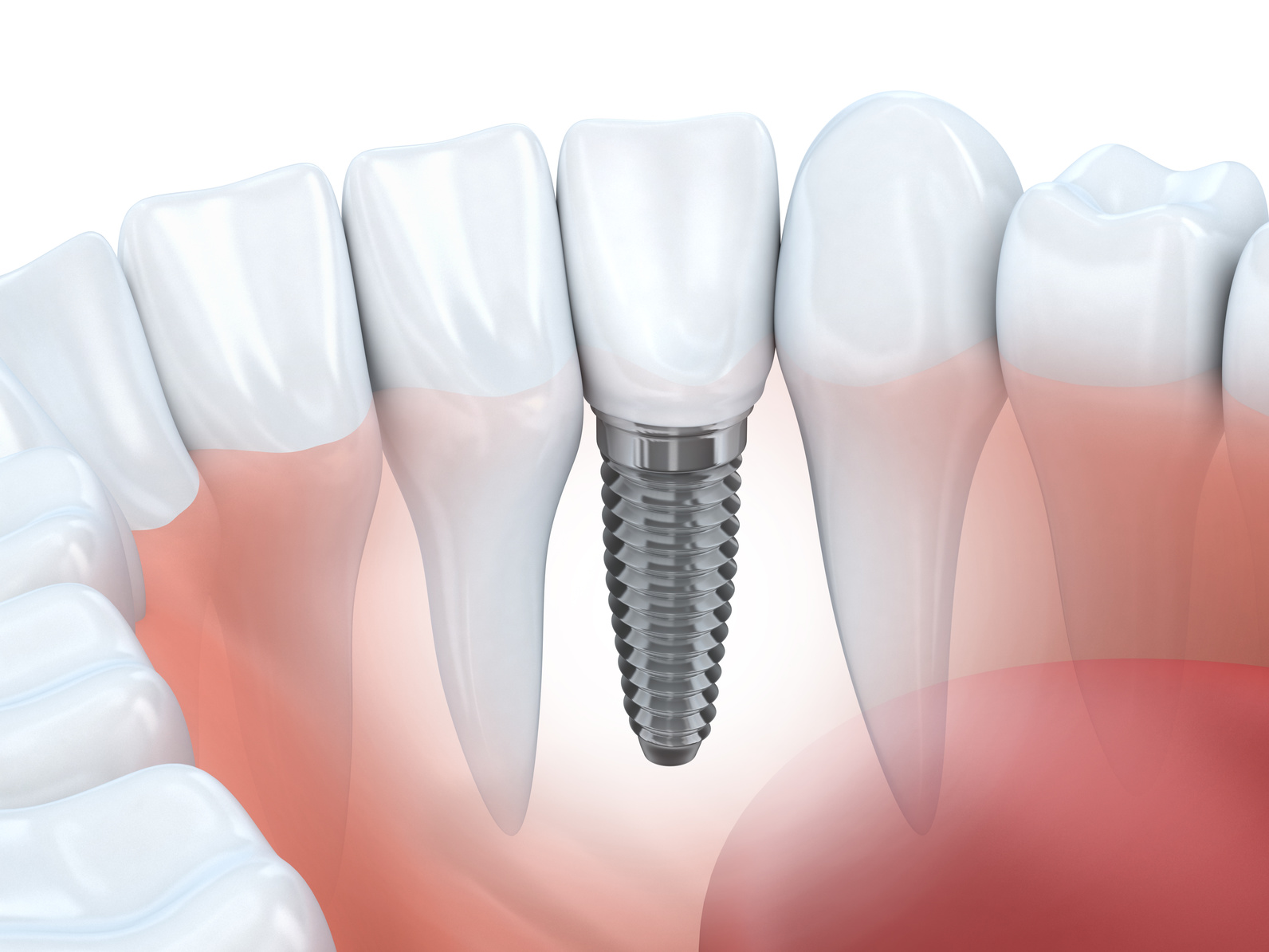 Tips for finding the Best Dental Implant Dentist in Denver, CO