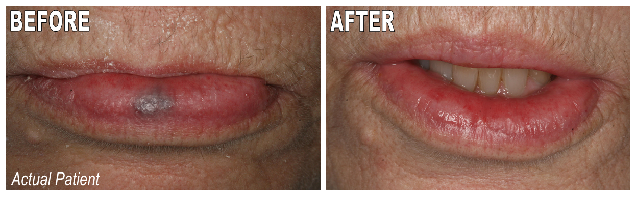 lip hyperpigmentation