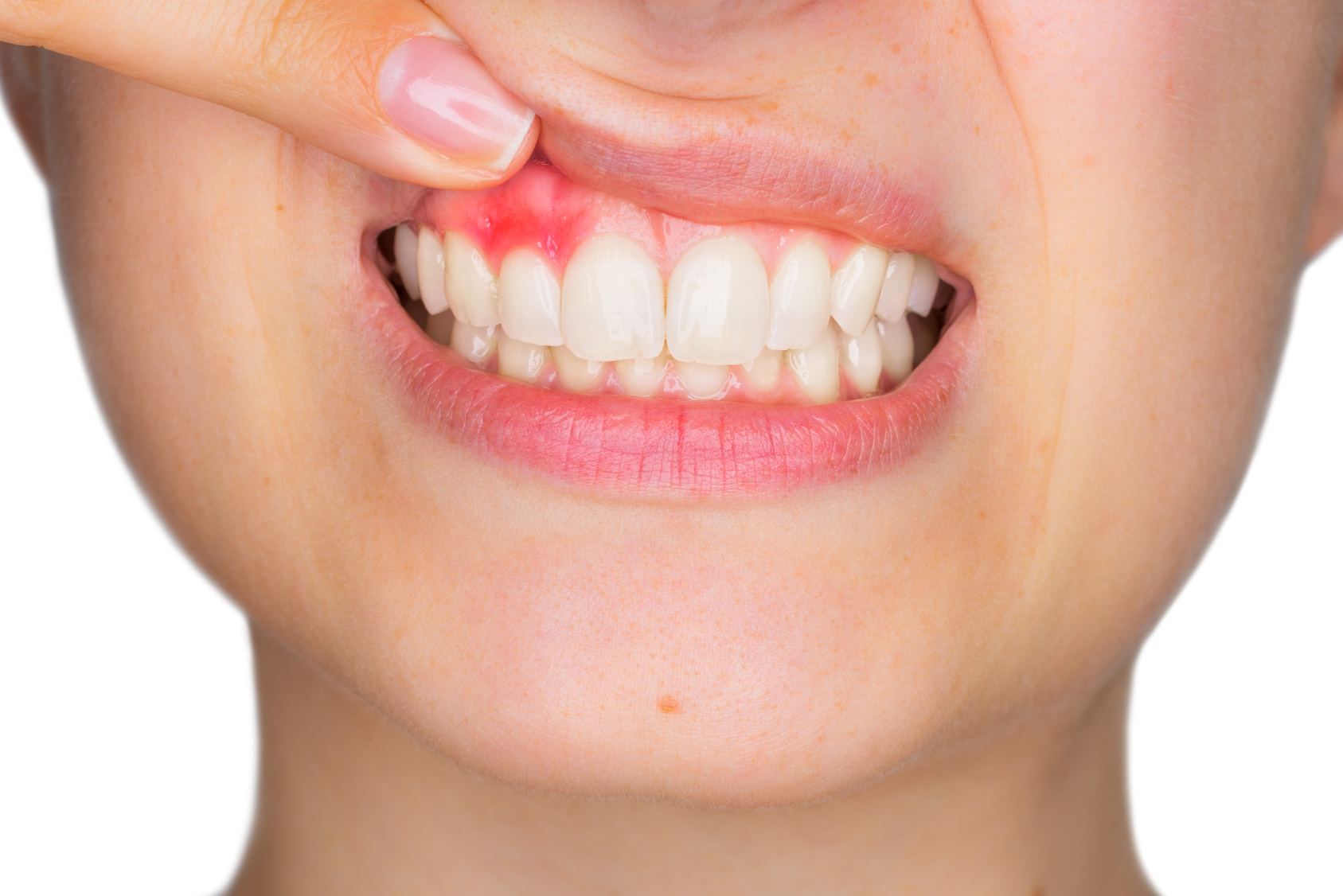 Best Treatments for Gum Recession