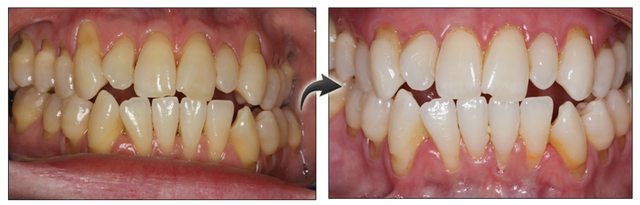 Revolutionary New Procedure for Correcting Gum Recession in Denver