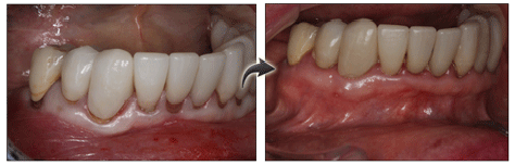 pinhole gum treatment pictures