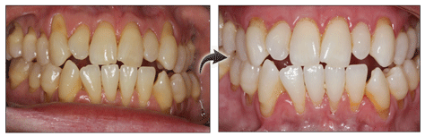 pinhole gum rejuvenation before and after photos