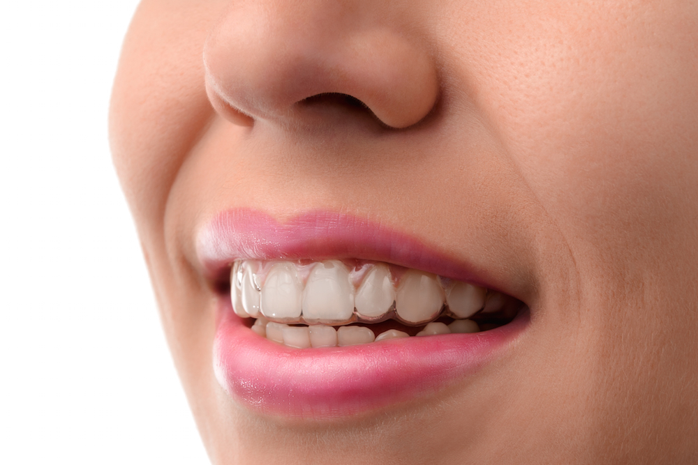 Best Treatments for Straighter Teeth