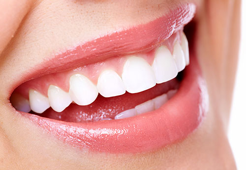 When to Choose Professional Teeth Whitening