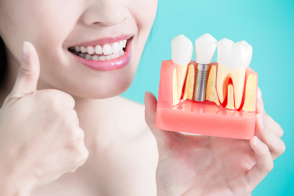Dental Implants: Do I Need a Bone Grafting Procedure?